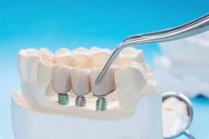 mplantologia i budowa implantu